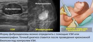 аденома молочной железы симптомы и лечение