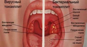 ангина бактериальная симптомы лечение