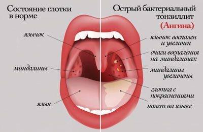 ангина без температуры симптомы у взрослых лечение