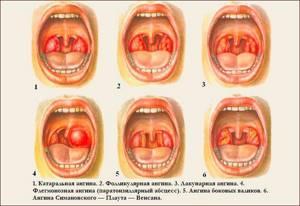 ангина лечение симптомы у взрослых