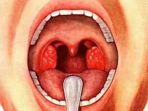 ангина симптомы и лечение при лактации