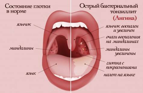 ангина симптомы и лечение в домашних