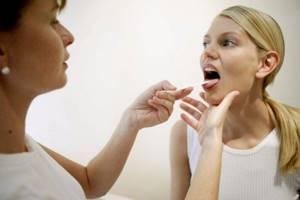 ангина симптомы и лечение в домашних условиях препараты