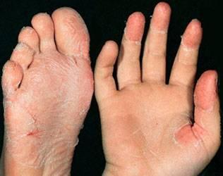 ангина скарлатина симптомы лечение