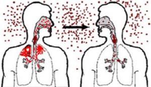 бактериальная ангина у взрослых симптомы и лечение