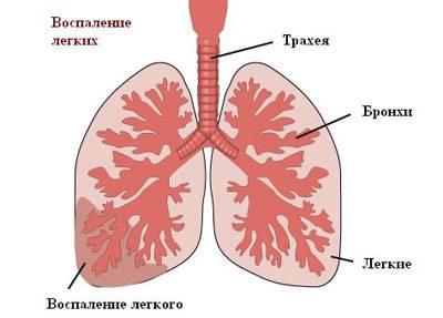 бактериальный бронхит симптомы и лечение