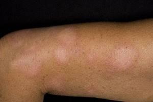 белый лишай у человека симптомы лечение