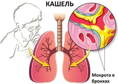 бронхит без температуры у взрослого симптомы и лечение лекарство