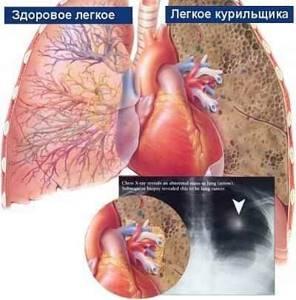 бронхит курильщика симптомы и лечение народными средствами