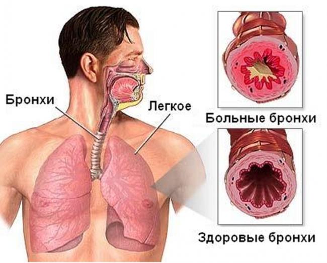 бронхит лечение народными средствами симптомы