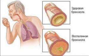 бронхит лечение симптомы профилактика