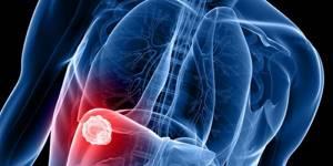 бронхит симптомы и лечение ингаляции