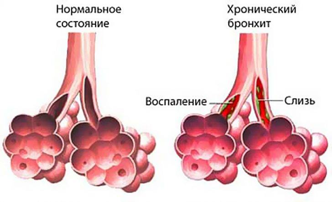 бронхит симптомы и лечение у взрослых бромгексин