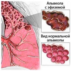 бронхит симптомы и лечение у взрослых осложнения