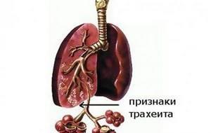 бронхит трахеит симптомы и лечение медикаментозное