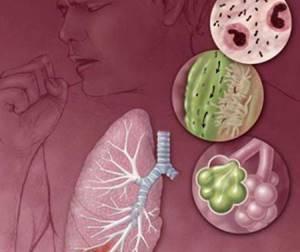 бронхоаденит у взрослых симптомы и лечение