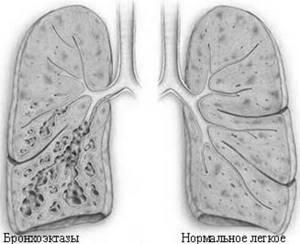 бронхоэктазы симптомы и лечение