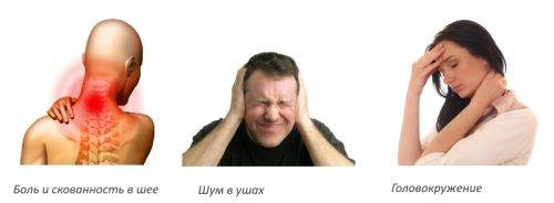 цервикалгия шейного отдела симптомы и лечение