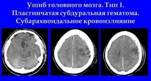 черепно мозговая травма симптомы лечение