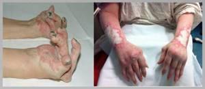 чешуйчатый лишай у человека симптомы лечение