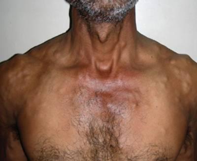 цистицеркоз диагностика симптомы лечение