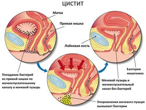 цистит клиника лечение симптомы