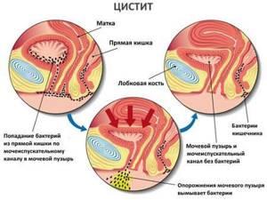 цистит махровый симптомы лечение