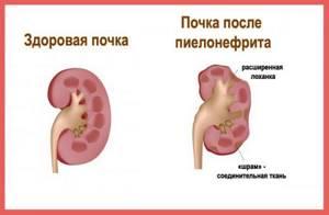 цистит пиелонефрит симптомы лечение