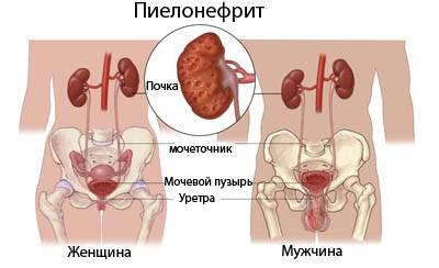 цистит симптомы и лечение пиелонефрит