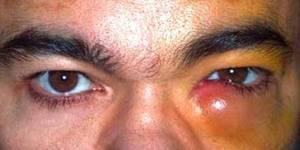 дакриоцистит у взрослых симптомы и лечение