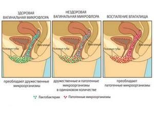 дисбактериоз матки симптомы и лечение