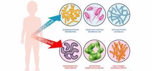 дисбактериоз в 2 месяца симптомы и лечение