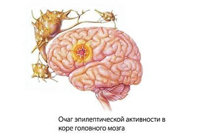 эпилептический приступ причины и симптомы лечение