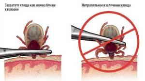 если укусил энцефалитный клещ симптомы лечение