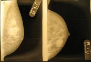 фиброаденома молочной железы лечение симптомы и лечение