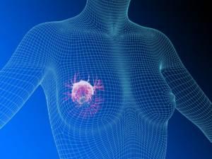фиброаденома молочной железы симптомы и лечение