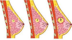 фиброаденома молочной железы симптомы и признаки лечение
