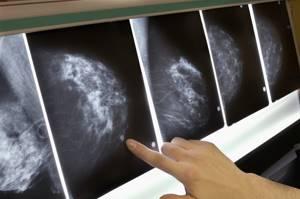 фиброз молочной железы симптомы лечение