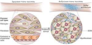 фиброзный цистит лечение и симптомы