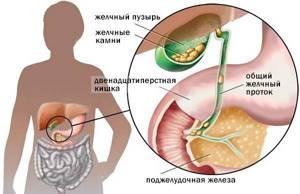 холецистит калькулезный симптомы лечение