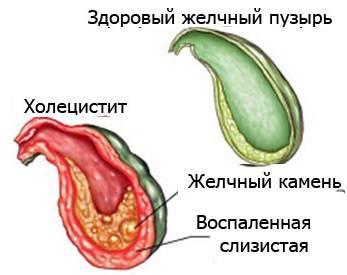 холецистит обострение симптомы лечение