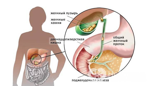 холецистит причины симптомы диагностика лечение профилактика