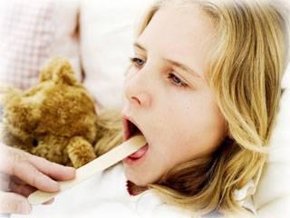 интоксикация при ангине симптомы и лечение