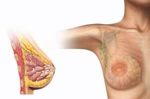 инволютивный фиброз молочных желез симптомы и лечение