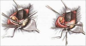 калькулезный холецистит симптомы и лечение капельницы