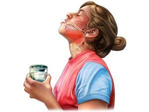 кандидозная ангина симптомы и лечение