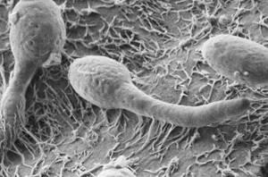 кандидозный дисбактериоз симптомы лечение
