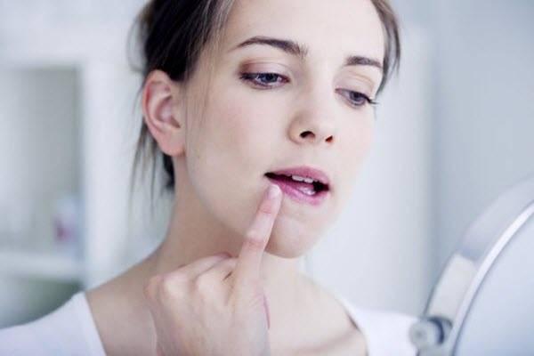 катаральная ангина симптомы у взрослых лечение
