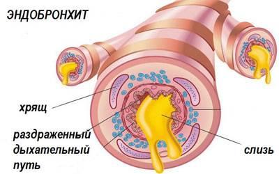 катаральный эндобронхит симптомы лечение