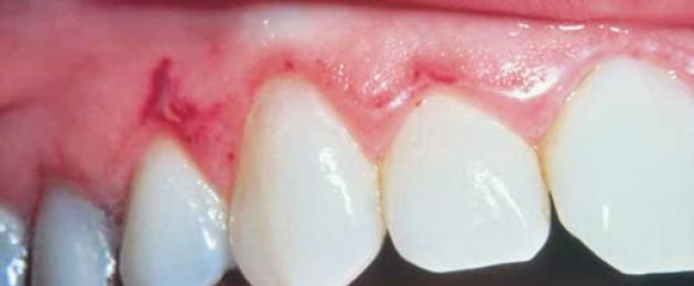 красный плоский лишай полости рта симптомы и лечение